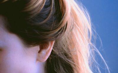 Mitos y realidades en las alopecias